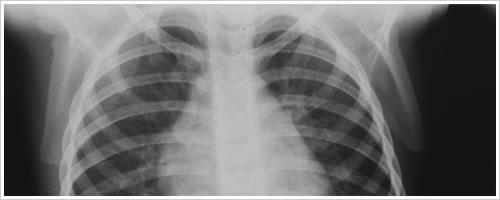 下腹部のCTと胸部X線検査を受けてきました